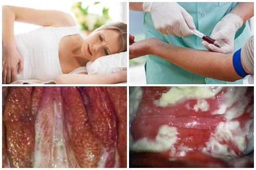 Âm đạo sưng tấy và tiểu buốt, có phải mắc bệnh lậu?