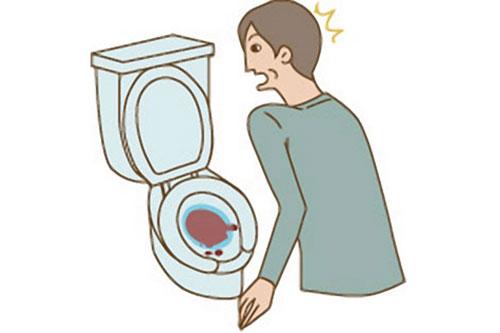 Dấu hiệu nhận biết bệnh phì đại tuyến tiền liệt