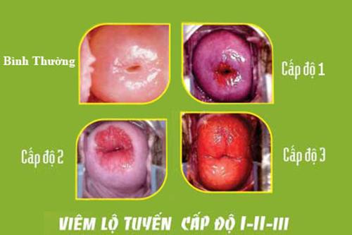 Dấu hiệu và cách hỗ trợ điều trị viêm lộ tuyến cổ tử cung độ 3