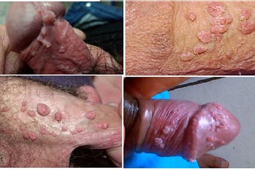 Một số bệnh ở lỗ sáo dương vật nguy hiểm