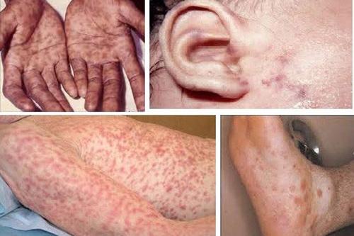Những dấu hiệu của bệnh giang mai cần lưu ý
