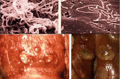 Những thông tin cần biết về bệnh hạ cam