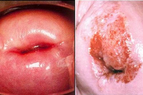 Tìm hiểu về bệnh lý viêm cổ tử cung