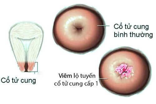 Tìm hiểu viêm lộ tuyến cổ tử cung cấp 1