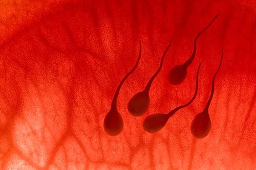 Tinh trùng lẫn máu là dấu hiệu bệnh gì?