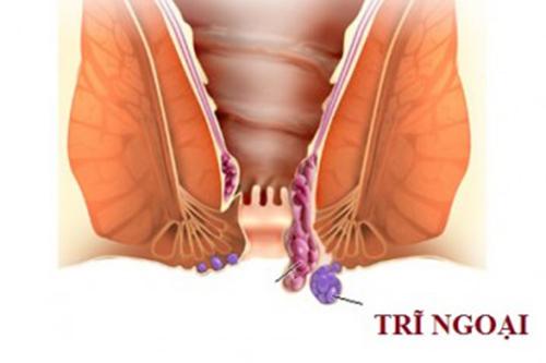 Triệu chứng báo hiệu mắc bệnh trĩ ngoại