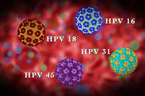 Nên xét nghiệm HPV bằng phương pháp nào?