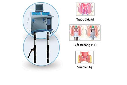Phương pháp phẫu thuật trĩ nội hiệu quả, an toàn