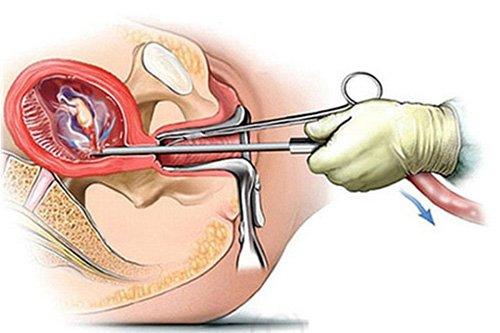 Phương pháp bỏ thai an toàn